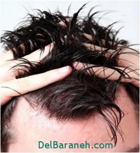 مو چرب, سلامت پوست و مو