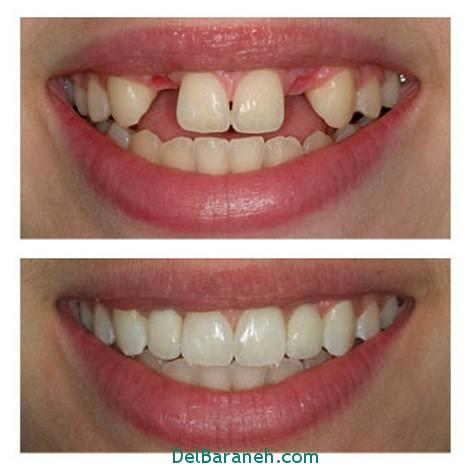 روکش دندان چیست؟