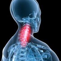 نحوه پیشگیری و درمان آرتروز گردن