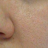 منافذ پوستی در بدن