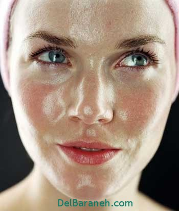 پوستهای چرب