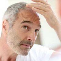طاسی و کچلی مردان | پیشگیری از ریزش مو در مردان