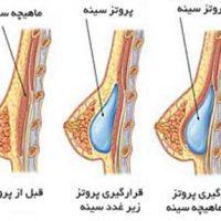 جراحی زیبایی سینه و پروتز