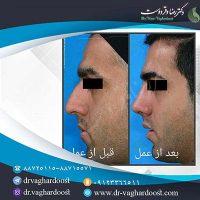 عمل زیبایی بینی دکتر وقردوست