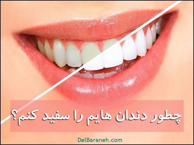 چطور دندان هایم را سفید کنم ؟