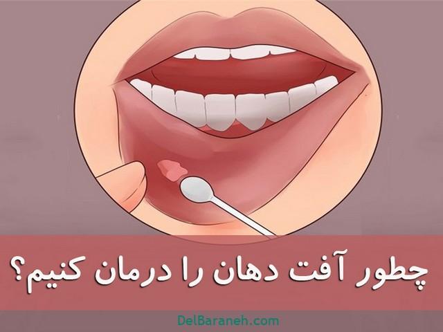 چطور آفت دهان را درمان کنیم