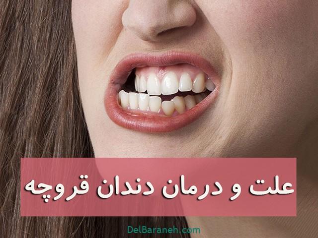 علت دندان قروچه چیست؟ + (درمان بزرگسالان و کودکان)