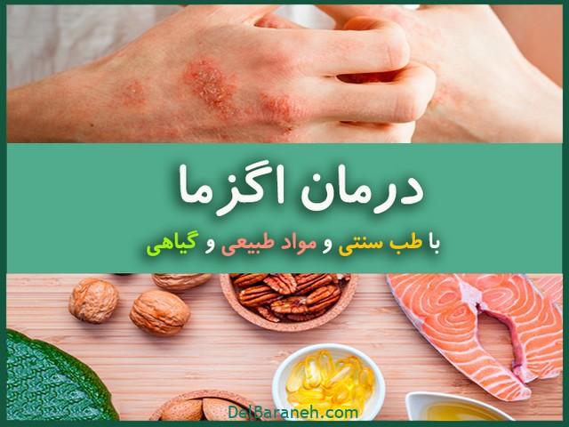 درمان خانگی اگزما (۱)