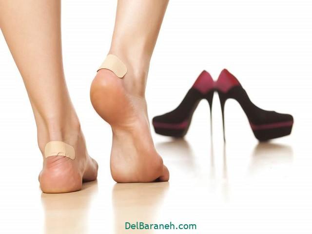 درمان تاول