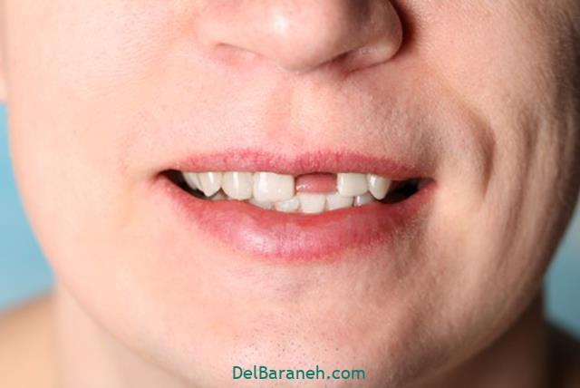 تعبیر خواب افتادن دندان از دهان