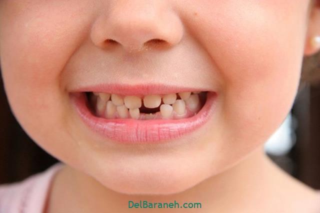 تعبیر خواب افتادن دندان به روایت تونی کریسپ