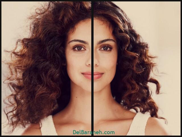 درمان خشکی مو و پوست (۲)