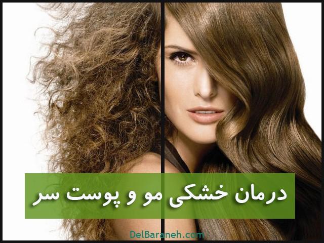درمان خشکی مو و پوست (۴)