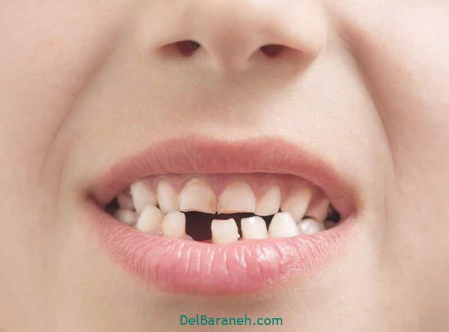دیدن افتادن دندان جلو در خواب