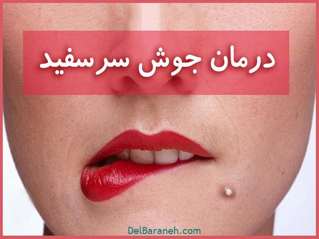 درمان جوش سر سفید (۱)