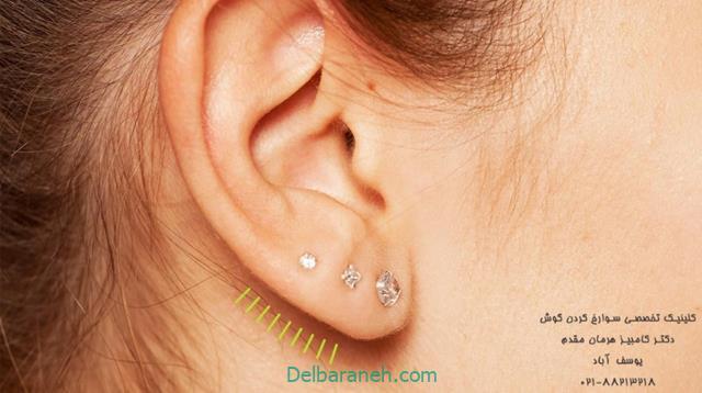 توصیههای ایمنی و بهداشتی برای سوراخ گوش یا پیرسینگ گوش